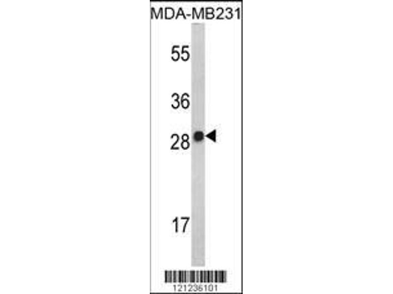 Western Blotting (WB) image for anti-Interleukin 2 (IL2) (AA 50-77), (Center) antibody (ABIN390899)
