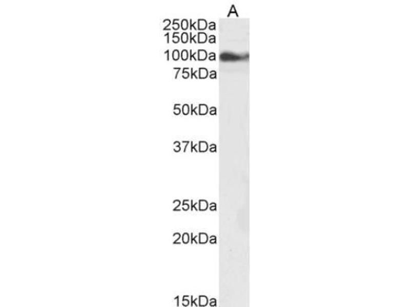 Western Blotting (WB) image for anti-Transient Receptor Potential Cation Channel, Subfamily C, Member 6 (TRPC6) (C-Term) antibody (ABIN269792)