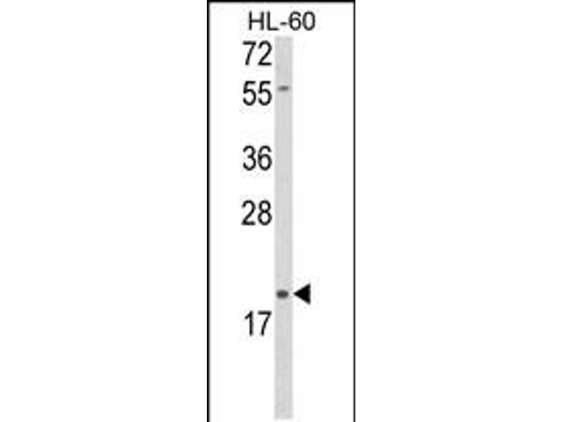 Image no. 2 for anti-delta-Like 2 Homolog (Drosophila) (DLK2) (AA 353-380), (C-Term) antibody (ABIN5539071)