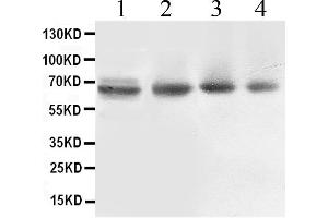 Image no. 1 for anti-ATP-Binding Cassette, Sub-Family B (MDR/TAP), Member 10 (ABCB10) (AA 640-678), (C-Term) antibody (ABIN4886409)