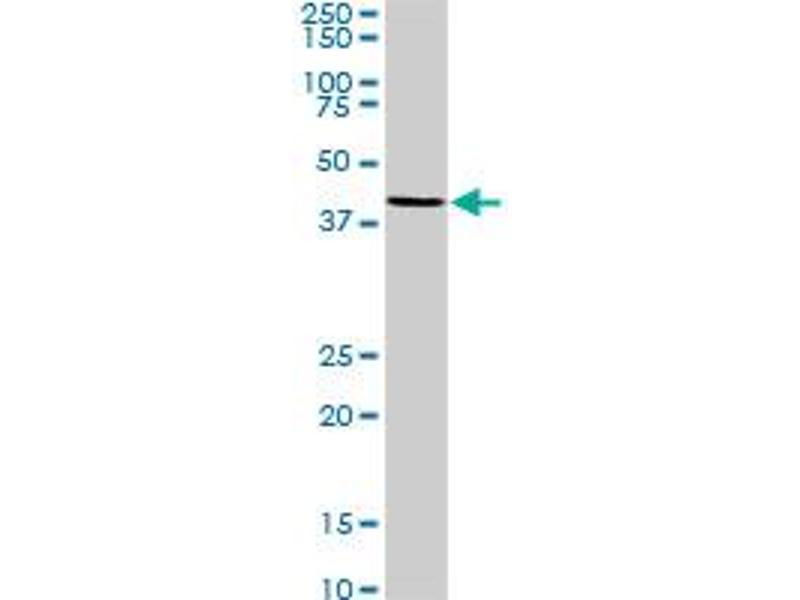 Western Blotting (WB) image for anti-MAP Kinase Interacting serine/threonine Kinase 2 (MKNK2) (AA 1-158), (full length) antibody (ABIN516167)