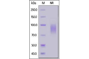 Image no. 2 for Killer Cell Lectin-Like Receptor Subfamily K, Member 1 (KLRK1) (AA 73-216) (Active) protein (Fc Tag,FITC) (ABIN7013619)