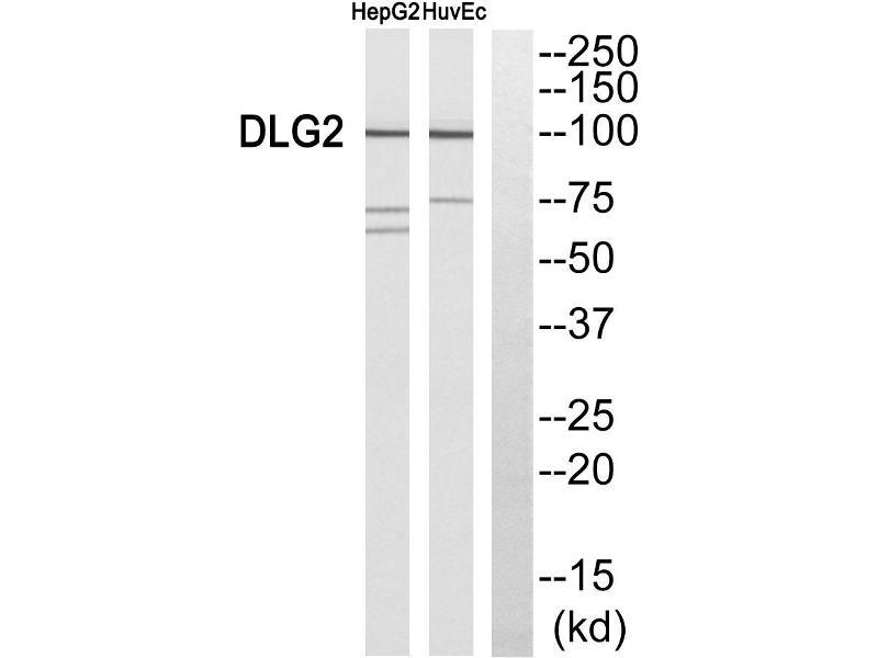 Image no. 2 for anti-Discs, Large Homolog 2 (Drosophila) (DLG2) antibody (ABIN1576085)