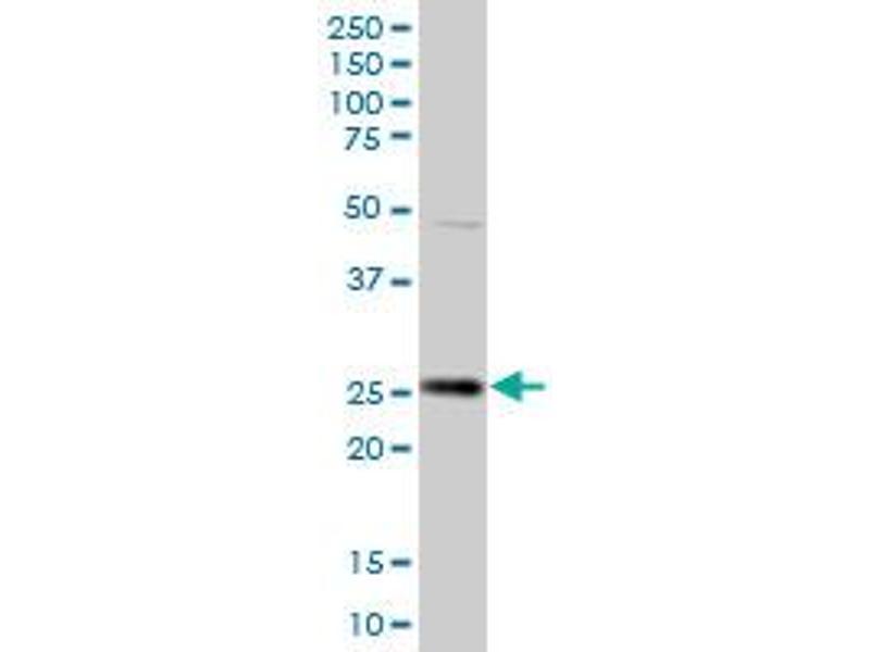 Western Blotting (WB) image for anti-HPGD antibody (Hydroxyprostaglandin Dehydrogenase 15-(NAD)) (AA 1-266) (ABIN516675)