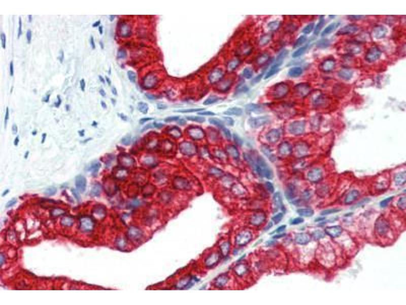 Immunohistochemistry (Paraffin-embedded Sections) (IHC (p)) image for anti-Keratin 18 (KRT18) antibody (FITC) (ABIN462333)