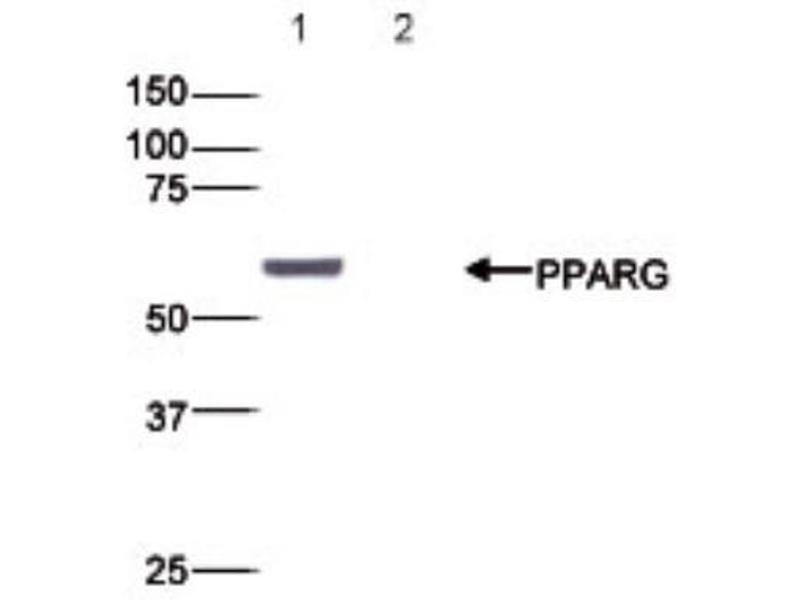 Western Blotting (WB) image for anti-PPARG antibody (Peroxisome Proliferator-Activated Receptor gamma) (ABIN5078973)