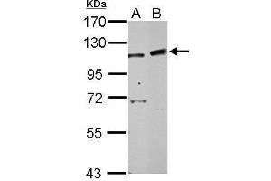 Image no. 2 for anti-PHD Finger Protein 16 (PHF16) (C-Term) antibody (ABIN2856485)