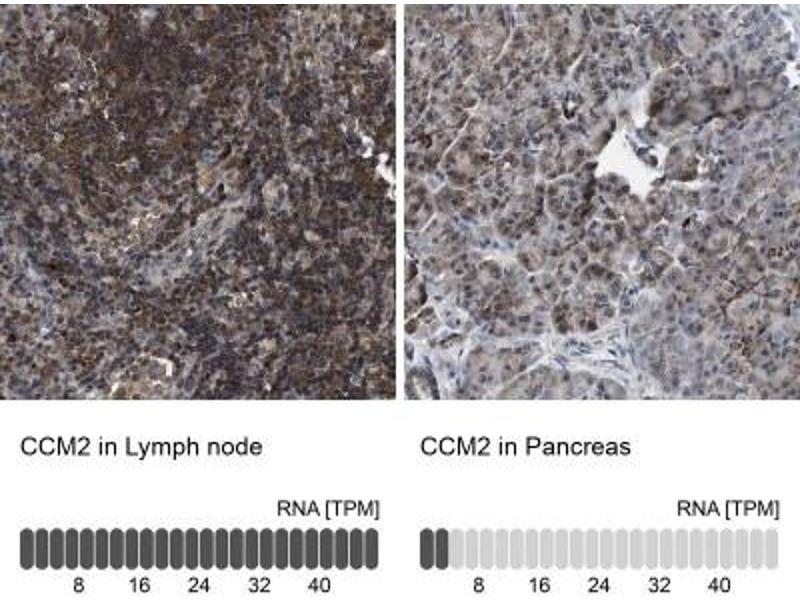 Immunohistochemistry (Paraffin-embedded Sections) (IHC (p)) image for anti-Cerebral Cavernous Malformation 2 (CCM2) antibody (ABIN4288902)
