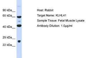 Image no. 1 for anti-Kelch-like protein 41 (KLHL41) (Middle Region) antibody (ABIN2778343)