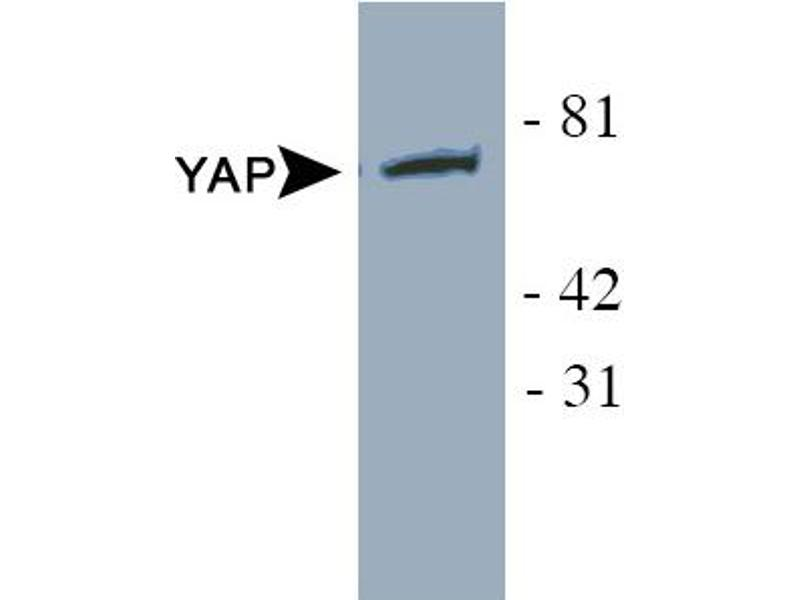 Western Blotting (WB) image for anti-YAP1 antibody (Yes-Associated Protein 1) (ABIN258559)