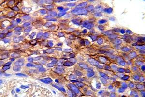 Immunohistochemistry (Paraffin-embedded Sections) (IHC (p)) image for anti-EGFR antibody (Epidermal Growth Factor Receptor) (pTyr1092) (ABIN498778)