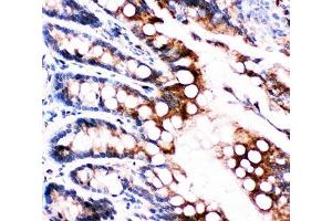 Image no. 5 for anti-Fatty Acid Binding Protein 5 (Psoriasis-Associated) (FABP5) (AA 10-23) antibody (ABIN3030914)