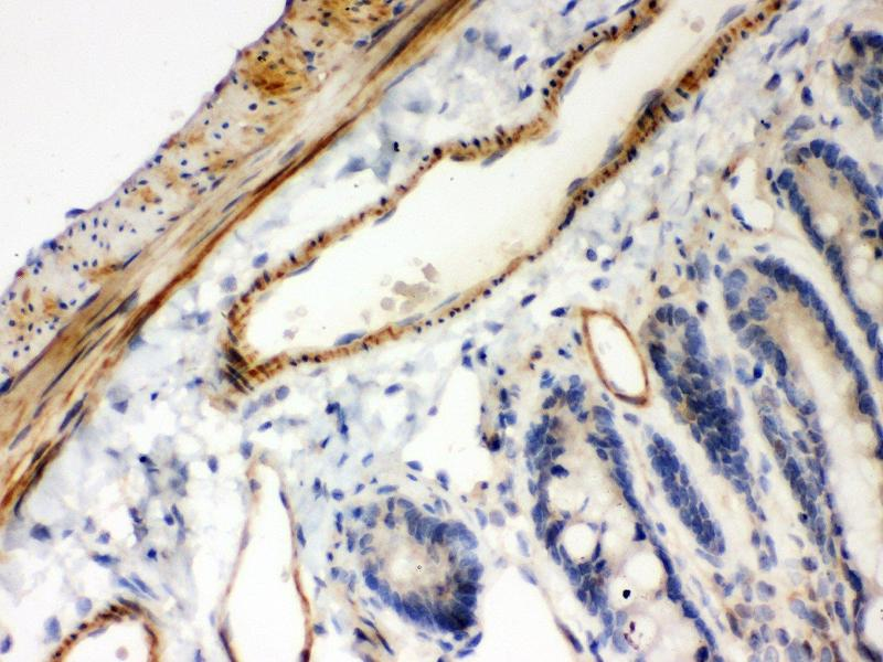 Immunohistochemistry (IHC) image for anti-NFKBIB antibody (Nuclear Factor of kappa Light Polypeptide Gene Enhancer in B-Cells Inhibitor, beta) (AA 56-237) (ABIN3043567)