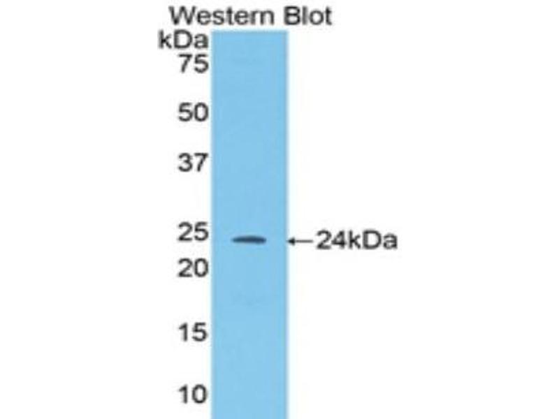 Western Blotting (WB) image for anti-Angiopoietin 1 (ANGPT1) (AA 35-231) antibody (ABIN1857990)