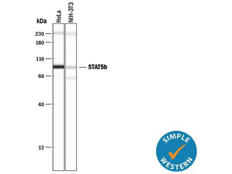Simple Western (SimWes) image for anti-Signal Transducer and Activator of Transcription 5B (STAT5B) (AA 777-787) antibody (ABIN4900487)