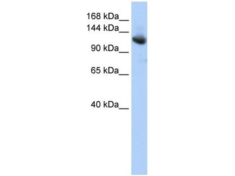 Western Blotting (WB) image for anti-Cullin-Associated and Neddylation-Dissociated 1 (CAND1) (Middle Region) antibody (ABIN2775887)