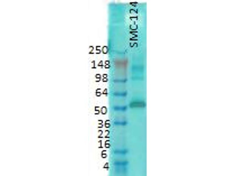 Western Blotting (WB) image for anti-CAMK2G antibody (Calcium/calmodulin-Dependent Protein Kinase II gamma) (alpha subunit) (ABIN361643)