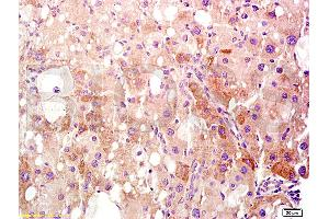 Immunohistochemistry (IHC) image for anti-HMGB1 antibody (High-Mobility Group Box 1) (AA 60-110) (ABIN671616)
