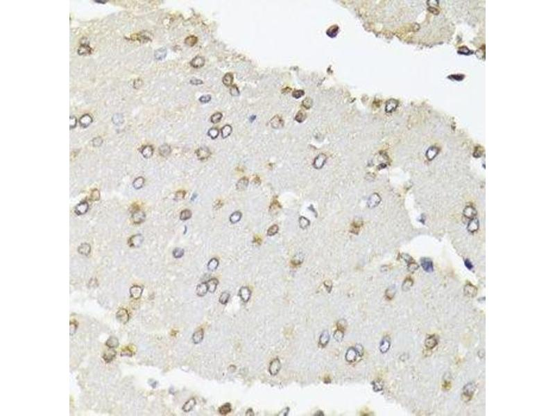 Immunohistochemistry (Paraffin-embedded Sections) (IHC (p)) image for anti-Polymerase (RNA) II (DNA Directed) Polypeptide B, 140kDa (POLR2B) antibody (ABIN6145916)