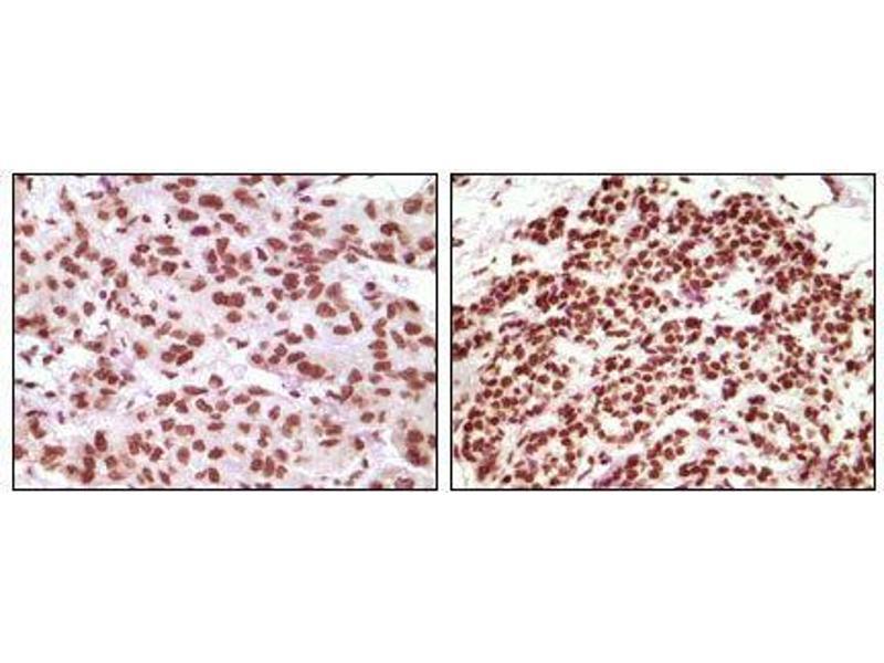 Immunohistochemistry (IHC) image for anti-Progesterone Receptor antibody (PGR) (ABIN969361)