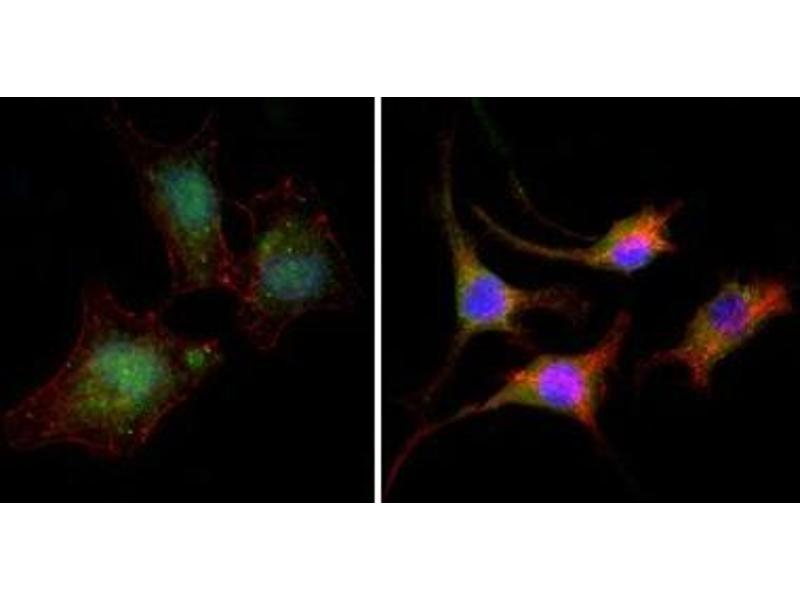 Immunofluorescence (IF) image for anti-CTNNB1 antibody (Catenin (Cadherin-Associated Protein), beta 1, 88kDa) (ABIN1105691)