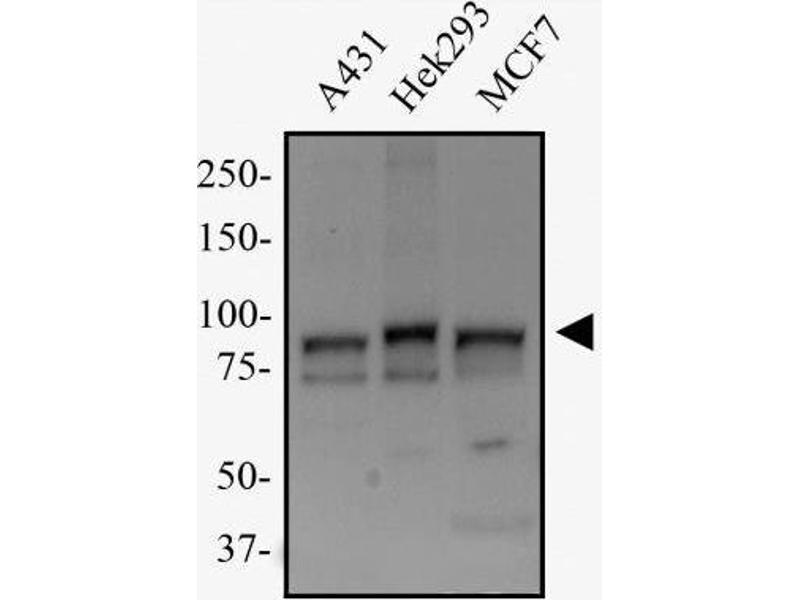 Western Blotting (WB) image for anti-Transportin 1 (TNPO1) antibody (ABIN269569)