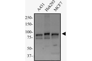 Western Blotting (WB) image for anti-Transportin 1 antibody (TNPO1) (ABIN269569)