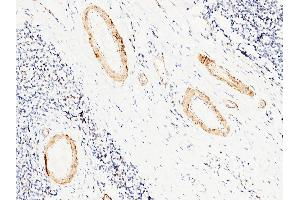 Image no. 3 for anti-Carbonic Anhydrase III (CA3) (AA 1-260) antibody (ABIN1996977)