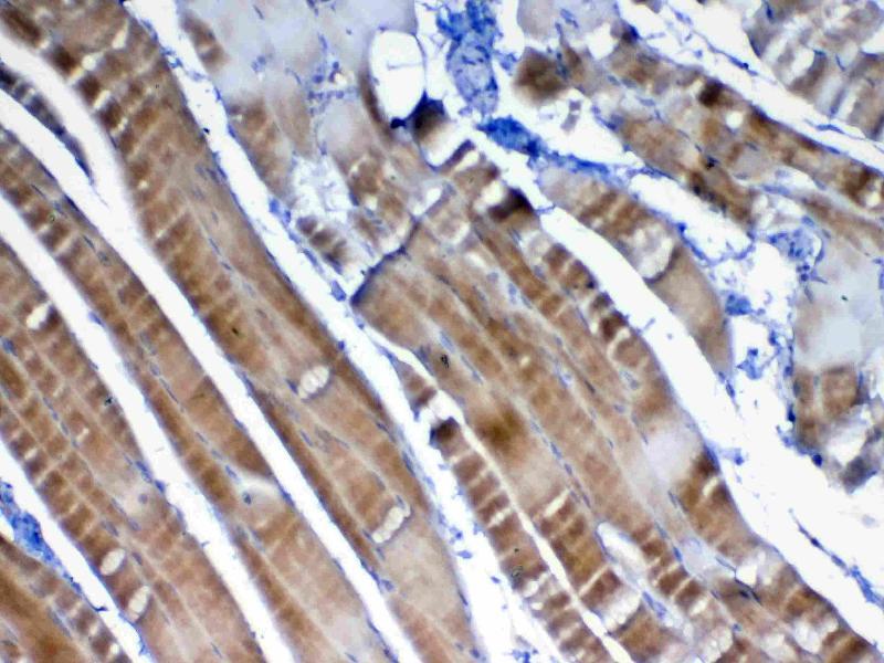 Immunohistochemistry (IHC) image for anti-Vascular Endothelial Growth Factor B (VEGFB) (AA 22-207) antibody (ABIN5692963)