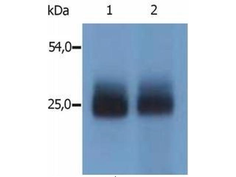 image for anti-Linker For Activation of T Cells Family, Member 2 (LAT2) (AA 30-203) antibody (ABIN238345)