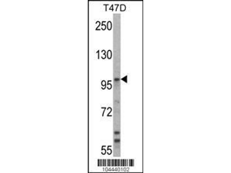 Western Blotting (WB) image for anti-Ubiquitin Protein Ligase E3A (ube3a) (AA 836-865), (C-Term) antibody (ABIN388925)