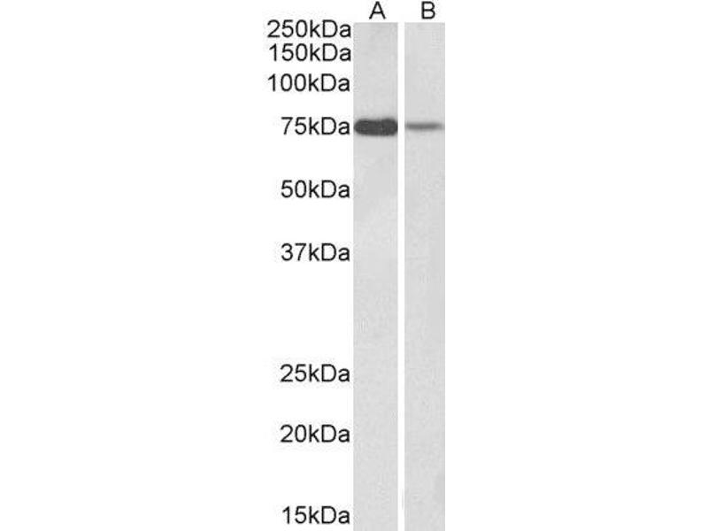 Western Blotting (WB) image for anti-Rac GTPase Activating Protein 1 (RACGAP1) (C-Term) antibody (ABIN2564849)