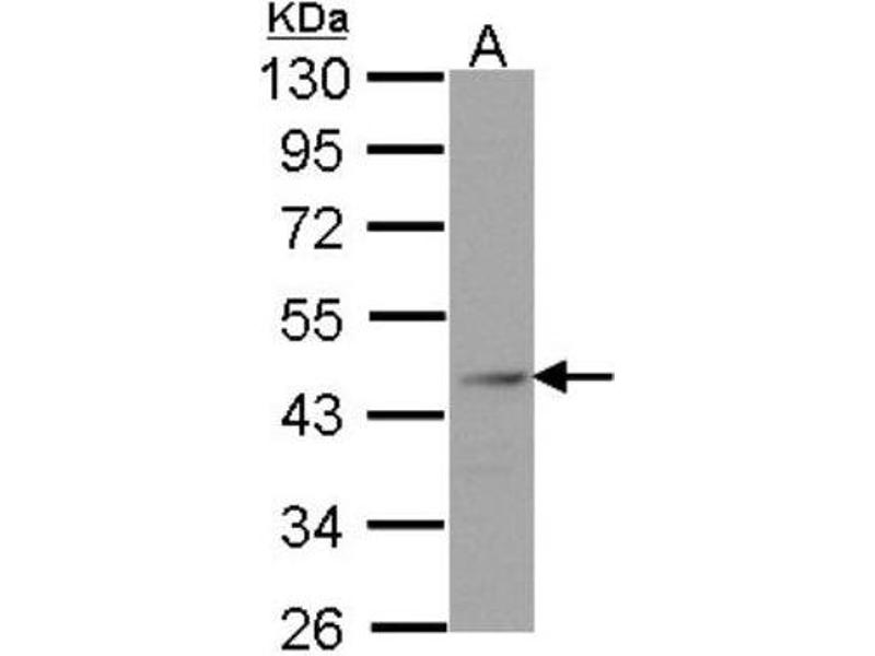 Western Blotting (WB) image for anti-FEN1 antibody (Flap Structure-Specific Endonuclease 1) (ABIN151083)