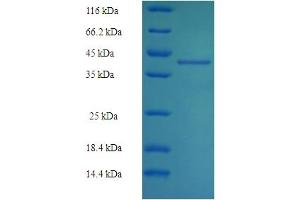 Image no. 1 for NQO2 (NQO2) (AA 1-231), (full length) protein (His-SUMO Tag) (ABIN5711893)