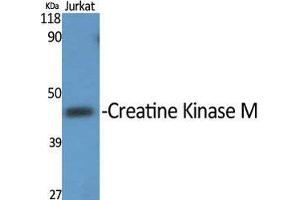 Image no. 2 for anti-Creatine Kinase, Muscle (CKM) (N-Term) antibody (ABIN3184074)