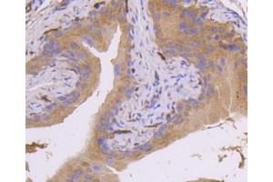 Immunohistochemistry (Paraffin-embedded Sections) (IHC (p)) image for anti-Mitogen-Activated Protein Kinase Kinase 7 (MAP2K7) (AA 400-500) antibody (ABIN5950426)