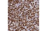 Immunohistochemistry (Paraffin-embedded Sections) (IHC (p)) image for anti-Mitochondrial Ribosomal Protein S12 (MRPS12) antibody (ABIN4335562)