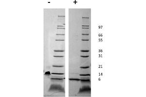Image no. 2 for Chemokine (C-X-C Motif) Ligand 12 (CXCL12) protein (ABIN6699686)