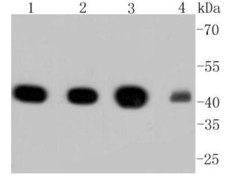 Western Blotting (WB) image for anti-Actin, alpha 2, Smooth Muscle, Aorta (ACTA2) (AA 1-200) antibody (ABIN5945116)