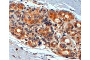 Immunohistochemistry (Paraffin-embedded Sections) (IHC (p)) image for anti-Wingless-Type MMTV Integration Site Family, Member 3 (WNT3) antibody (ABIN251471)