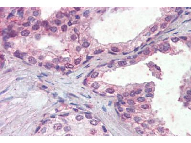 Immunohistochemistry (Paraffin-embedded Sections) (IHC (p)) image for anti-Interferon alpha/beta Receptor 2 (IFNAR2) (AA 28-40) antibody (ABIN462291)
