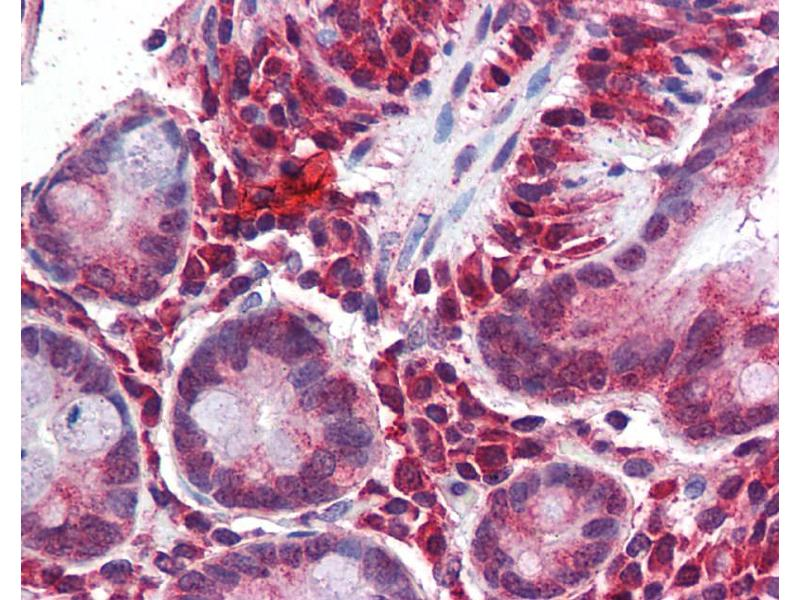 Immunohistochemistry (IHC) image for anti-Matrix Gla Protein (MGP) (Middle Region) antibody (ABIN406168)