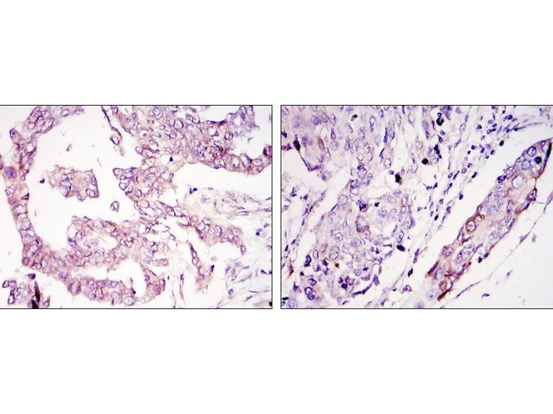 Immunohistochemistry (IHC) image for anti-WIF1 antibody (WNT Inhibitory Factor 1) (ABIN969457)