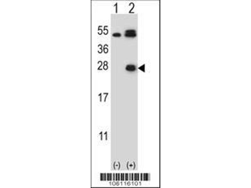 Western Blotting (WB) image for anti-Kallikrein 6 (KLK6) (AA 126-156), (Center) antibody (ABIN652196)