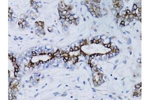 Image no. 3 for anti-Breast Cancer 1 (BRCA1) antibody (ABIN6566504)