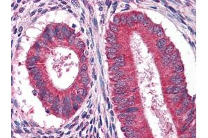 Immunohistochemistry (IHC) image for anti-Epidermal Growth Factor (EGF) antibody (ABIN969091)
