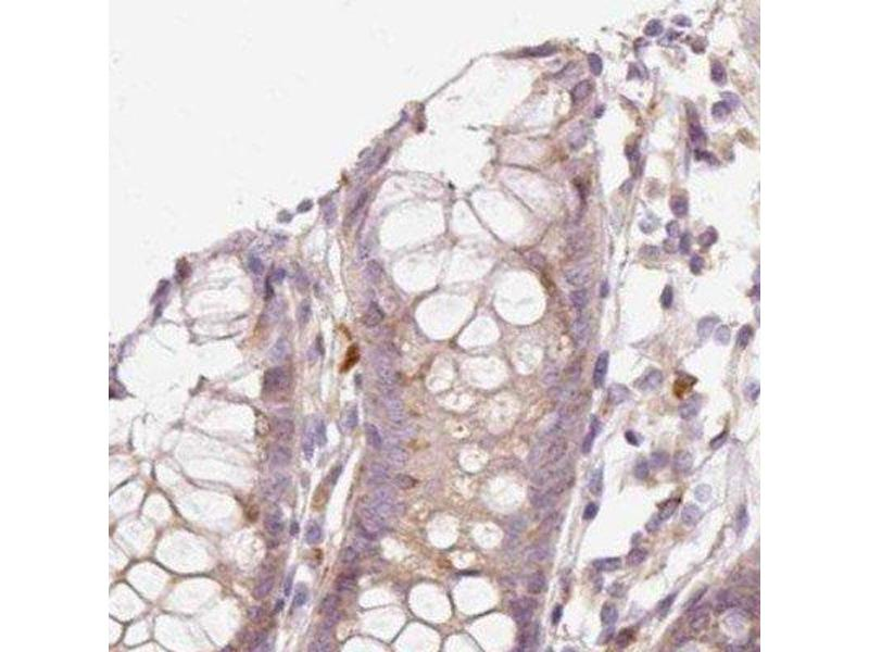 Immunohistochemistry (IHC) image for anti-Potassium Voltage-Gated Channel, KQT-Like Subfamily, Member 1 (KCNQ1) antibody (ABIN4329459)