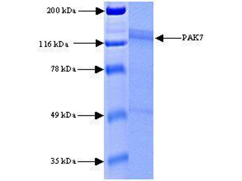 SDS-PAGE (SDS) image for P21 Protein (Cdc42/Rac)-Activated Kinase 7 (PAK7) (Active) protein (ABIN411934)