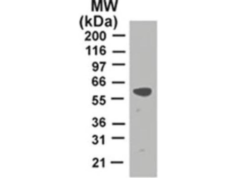 Western Blotting (WB) image for anti-TNF Receptor-Associated Factor 2 (TRAF2) antibody (ABIN252657)