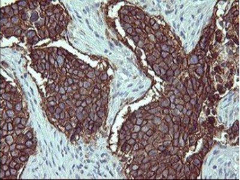Immunohistochemistry (IHC) image for anti-IL1A antibody (Interleukin 1 alpha) (ABIN4324360)